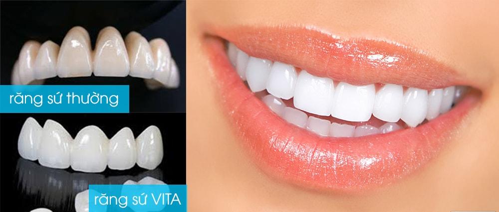 Tư vấn: Bọc răng sứ Vita có vĩnh viễn hay không?