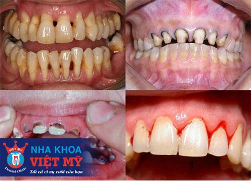 bọc răng sứ uy tín tại Bến Lức