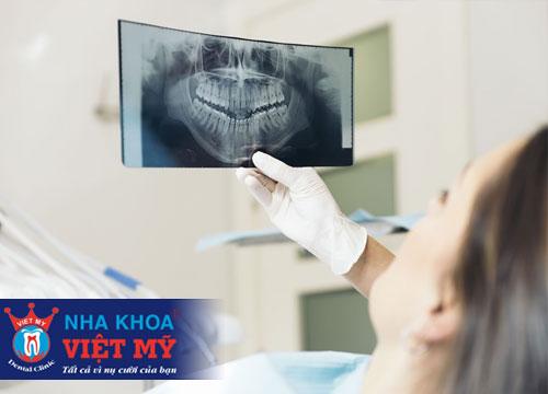 nha khoa uy tín về nhổ răng và tẩy trắng răng tại Bến Lức