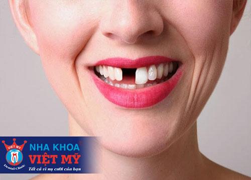 trồng răng sứ tốt nhất tại Rạch Giá