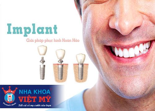 cắm implant giá rẻ tại Bến Lức