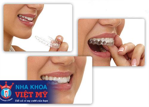 niềng răng rẻ nhất tại Đà Nẵng