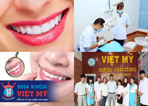 nha khoa nhổ răng và tẩy trắng răng tốt nhất tại Kiên Giang