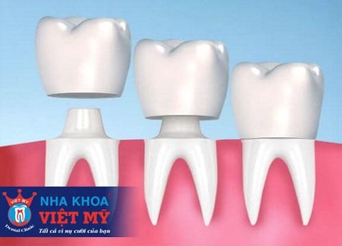 trung tâm nha khoa bọc răng sứ tốt nhất tại Quảng Bình