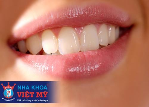 Bọc răng sứ titan bao nhiêu tiền 1 chiếc