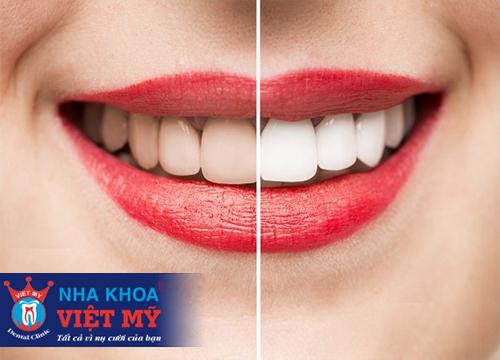 trung tâm nha khoa tẩy trắng răng chất lượng tại Quận Liên Chiểu