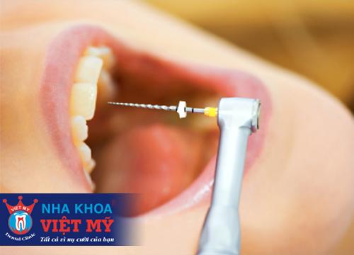điều trị tủy răng an toàn hết bao nhiêu tiền