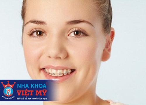 Niềng răng giá bao nhiêu là rẻ nhất?