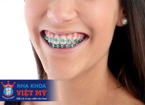niềng răng có đau không và giá bao nhiêu là rẻ nhất
