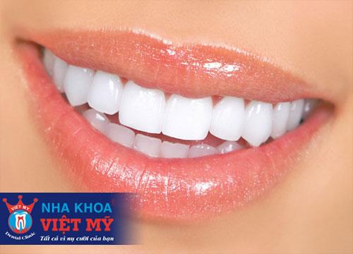 nha khoa tẩy trắng răng tốt nhất tại Quãng Bình