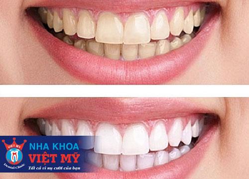 trung tâm nha khoa tẩy trắng răng uy tín tại Sa Huỳnh
