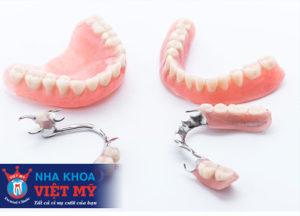 Trồng răng giả tháo lắp hết bao nhiêu tiền là rẻ nhất