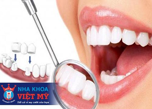 trồng răng sứ tốt nhất tại Quảng Bình