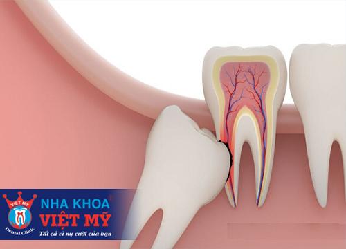 Nhổ 1 cái răng khôn có đau không