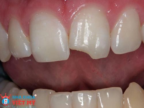 răng bị nứt vỡ