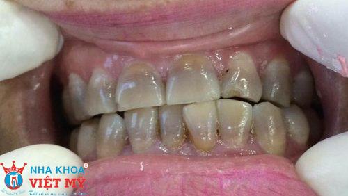 men răng bị đổi màu