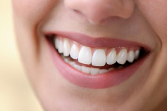 bọc răng sứ giúp răng đẹp hơn