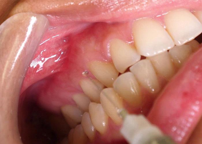 gây tê răng cục bộ
