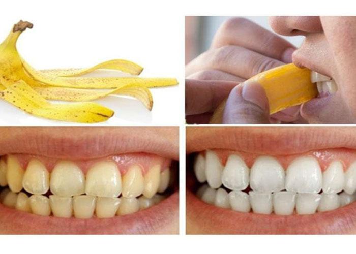 làm trắng răng bằng bỏ chuối