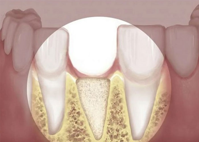 mất răng làm tiêu xương hàm