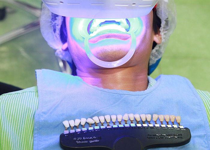 tẩy trắng răng tại nha khoa việt mỹ