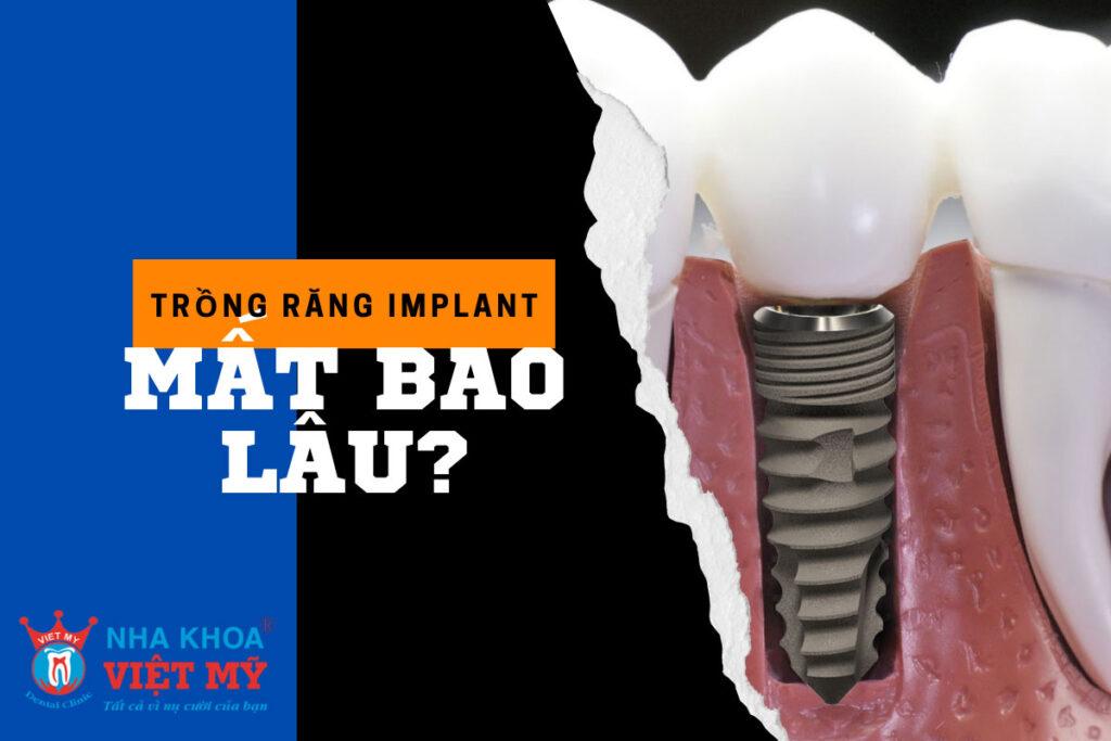 trong rang implant mat bao lau